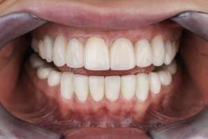 changer ses dents